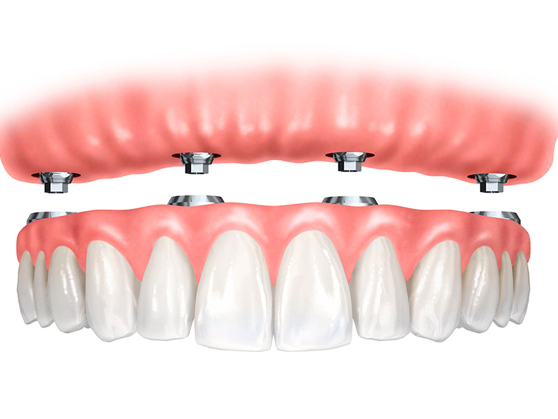 Trồng Implant all on 4 hoặc on 6